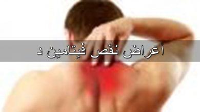 Photo of تعرف علي اعراض نقص فيتامين د