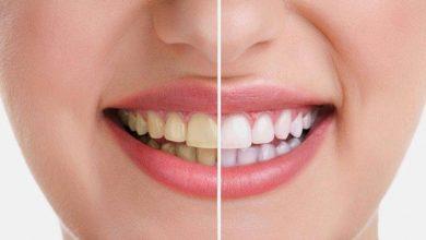 Photo of طبيب أسنان :مشاكل الأسنان واللثة  لابد من علاجها فورا لانها قد تؤدي الي أمراض جسدية